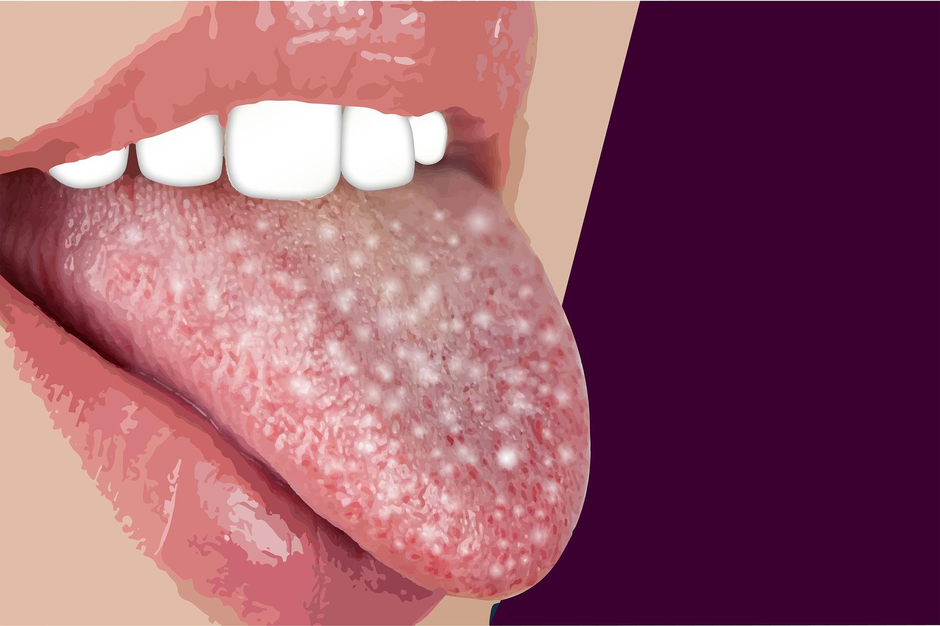 פצעים בחלל הפה