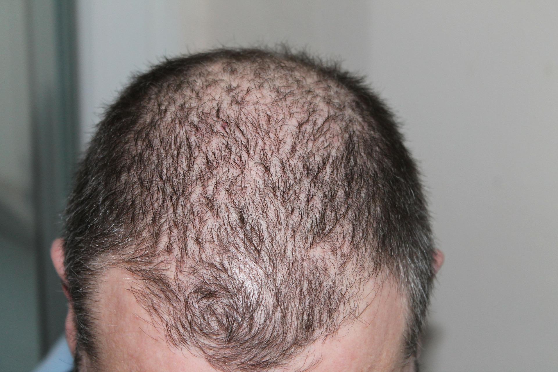 איך למנוע נשירת שיער